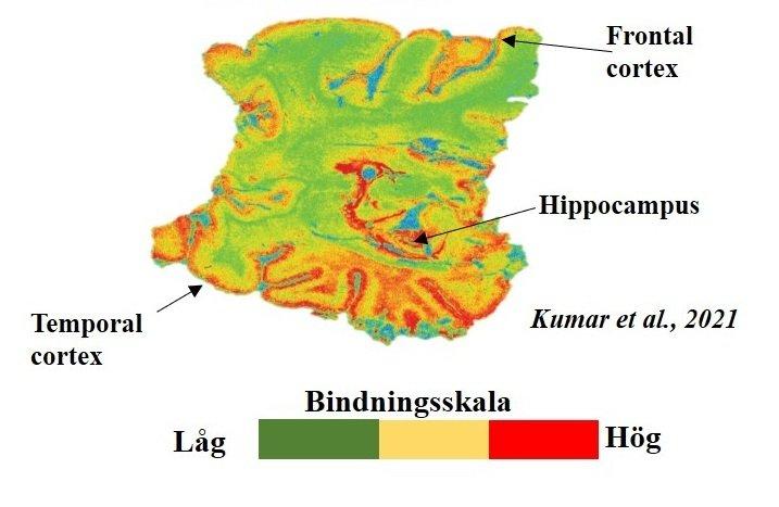 Bindningen av PET-spårämnet BU99008 visar reaktiv astroglios i olika delar av hjärnan hos en avliden patient med Alzheimers sjukdom. Färgskalan visar bindningens omfattning, där grön är låg, gul är mellanhög, och röd är hög bindning.