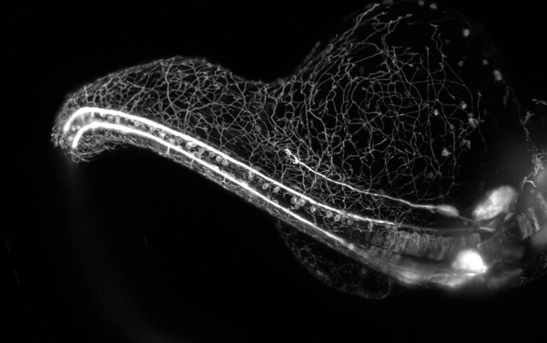 Zebrafish embryo growing its elaborate sensory nervous system, captured in a light sheet microscope.