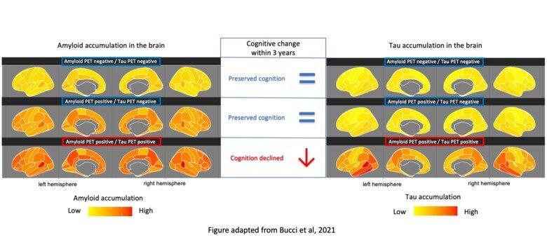 Bild som visar att hög ackumulering av tau i hjärnan mätt med PET-kamera var den enda biomarkör som kunde förutsäga kognitiv försämring hos friska individer, personer med mild kognitiv nedsättning och personer med Alzheimerdemens.