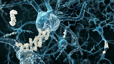 Amyloid plaques in Alzheimer's disease