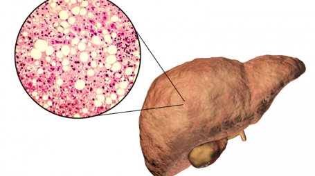 Illustration of fatty liver disease